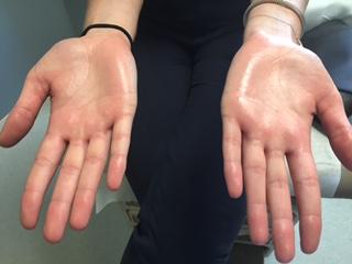 Sweaty hands due to palmar hyperhidrosis