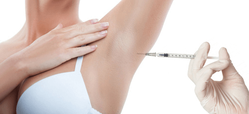 Woman getting a Botox injection into her armpit to treat excessive underarm sweating